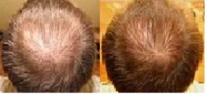 Hairstim - cena - prodej
