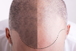 Hairstim - výsledky - forum - recenze - diskuze