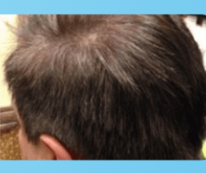 Anti-Grey Treatment - cena - prodej